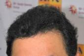 Rishi Kapoor's Stunts Stun Hollywood Action Directors