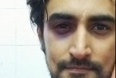 Kunal Kapoor Left with a Black Eye and a Broken Tooth!