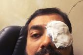Anurag Kashyap's Eye-Bandage Experiment Sends Media Into a Frenzy!