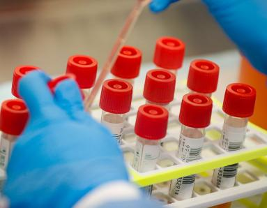 Coronavirus Vaccine: First Clinical Trial To Be Conducted on Monday