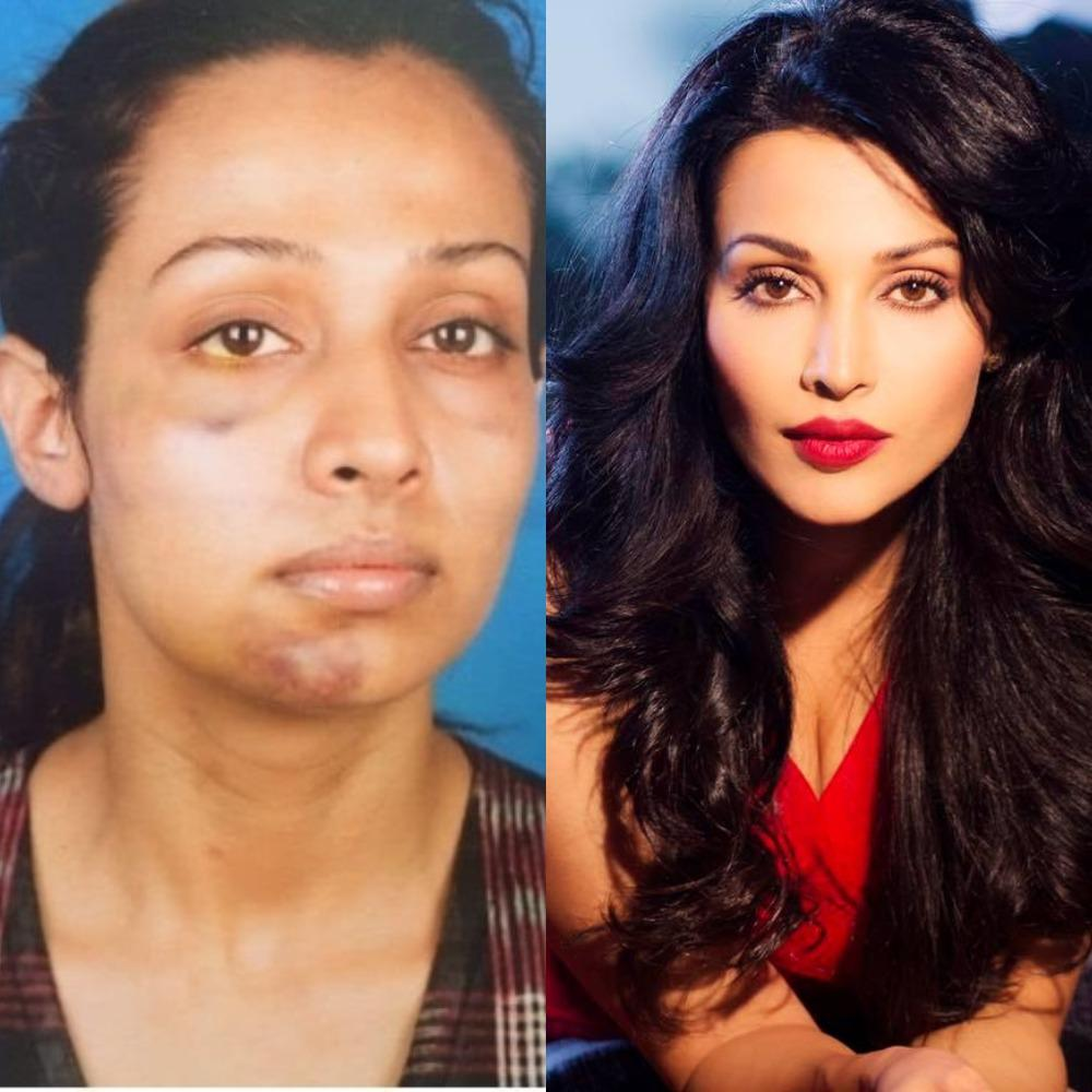 Flora Saini, Actress Who Played the Ghost in 'Stree' Shares SHOCKING Pics of Abuse