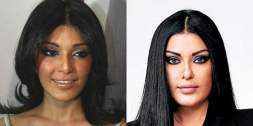 Big Boss 13 Contestant Koena Mitra Falls Prey to Twitter Trolls Following Plastic Surgery Gone Wrong