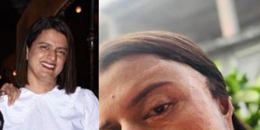 Rangoli Chandel Reveals Horrific Details About Her Acid Attack Incident