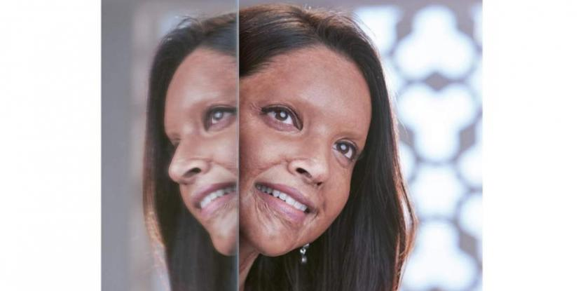 Deepika Padukone-Starrer Chhapaak's Trailer To Release On World Human Rights Day